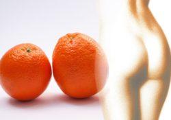 Mýty, které se týkají celulitidy a kterým řada žen věří